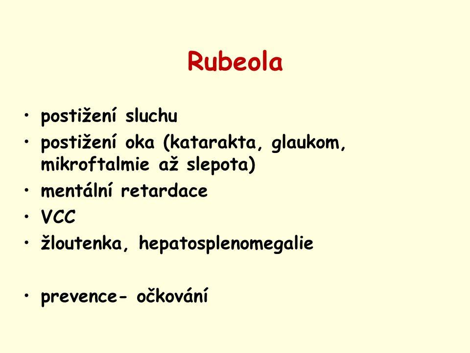 Rubeola postižení sluchu