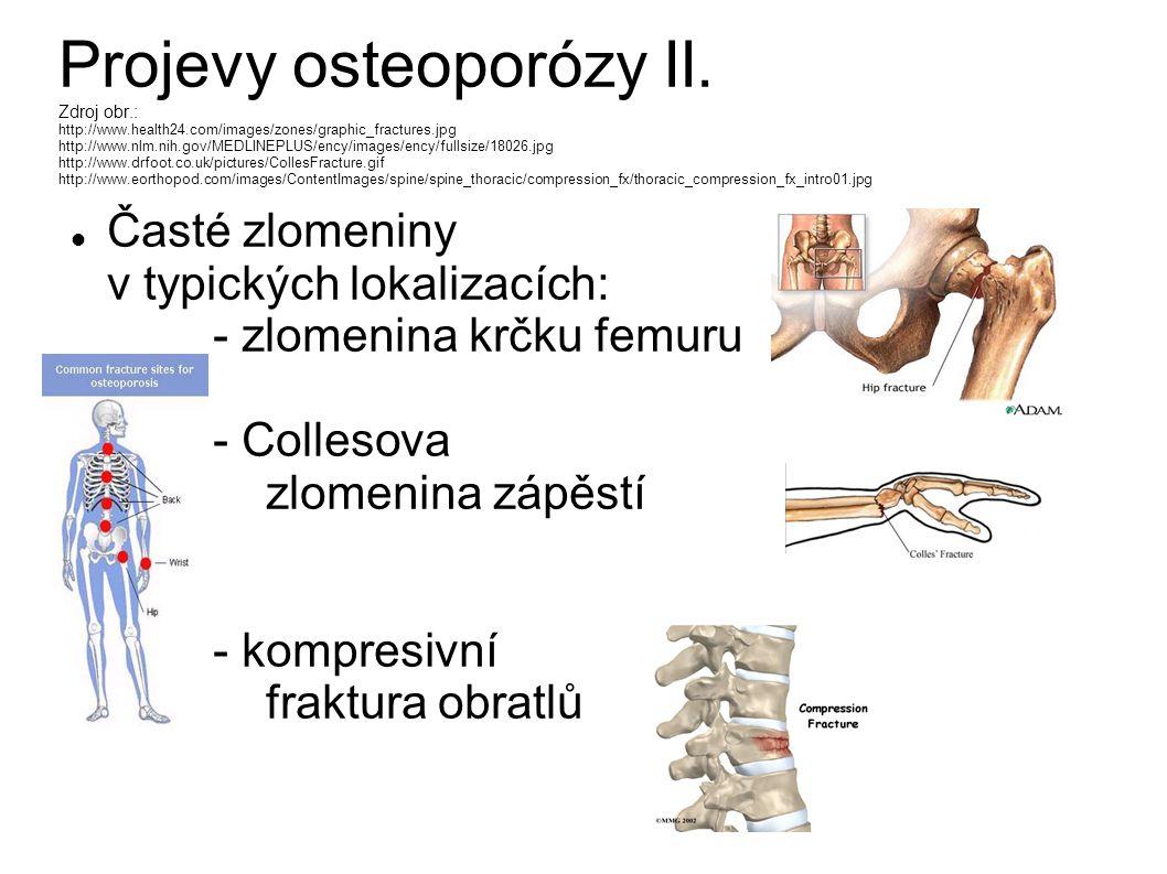 Projevy osteoporózy II. Zdroj obr. : http://www. health24