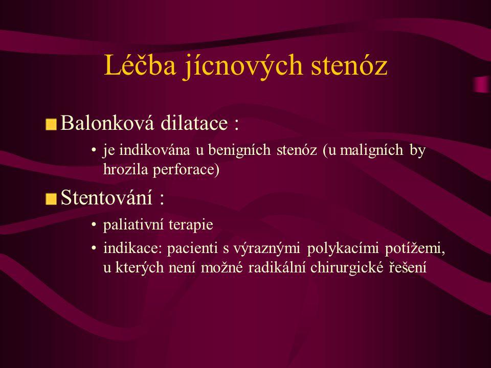 Léčba jícnových stenóz