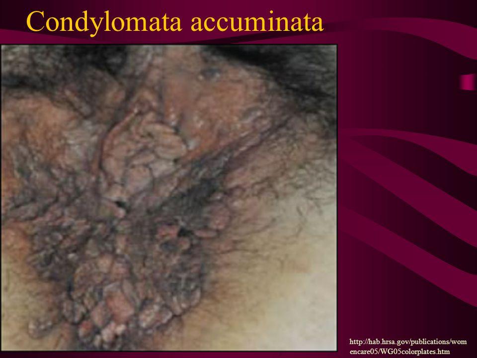 Condylomata accuminata