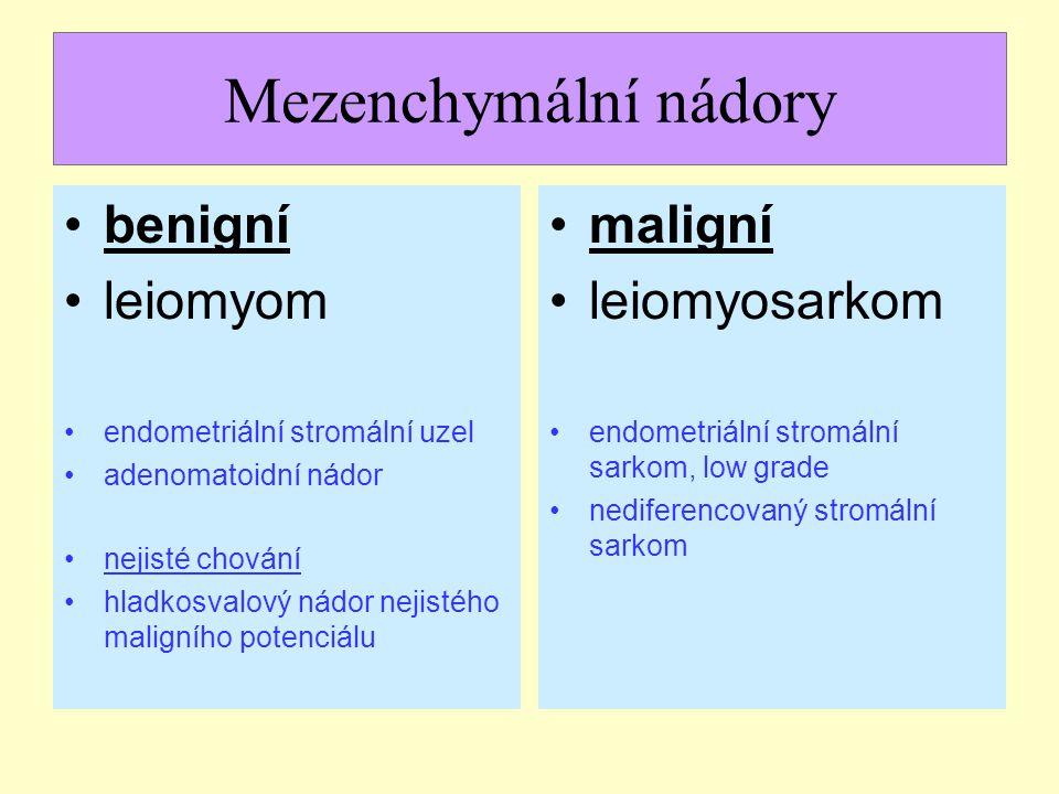 Mezenchymální nádory benigní leiomyom maligní leiomyosarkom