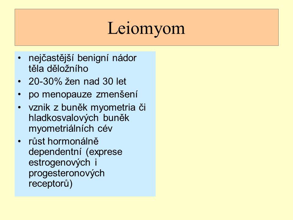 Leiomyom nejčastější benigní nádor těla děložního
