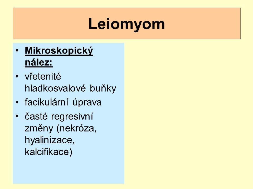 Leiomyom Mikroskopický nález: vřetenité hladkosvalové buňky