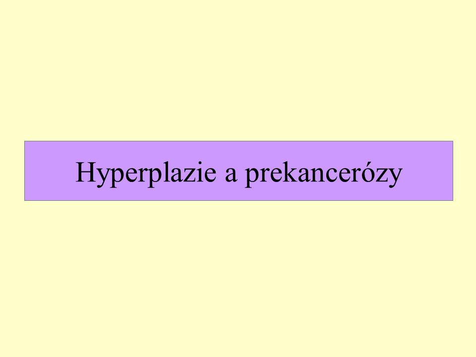 Hyperplazie a prekancerózy