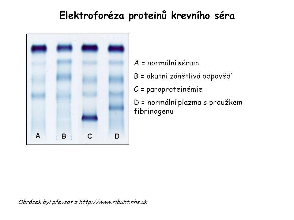 Elektroforéza proteinů krevního séra