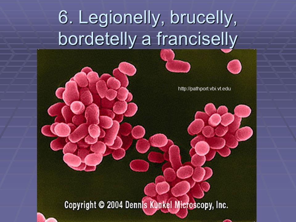 6. Legionelly, brucelly, bordetelly a franciselly