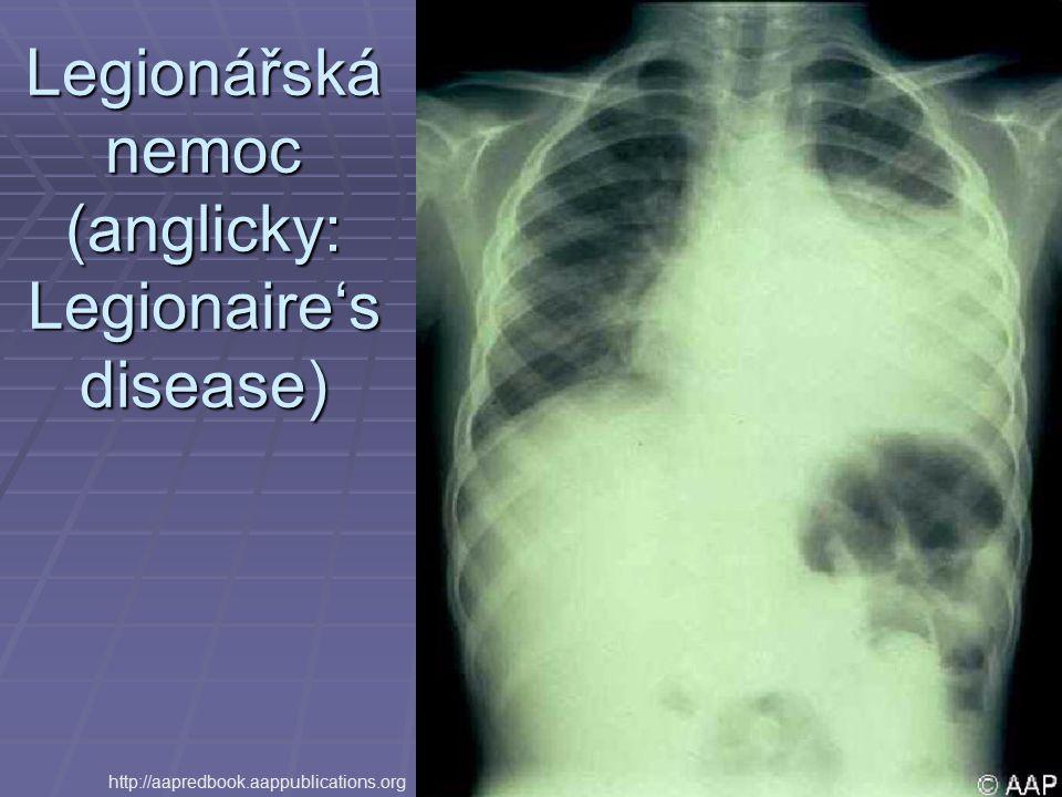 Legionářská nemoc (anglicky: Legionaire's disease)