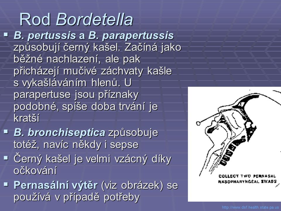 Rod Bordetella