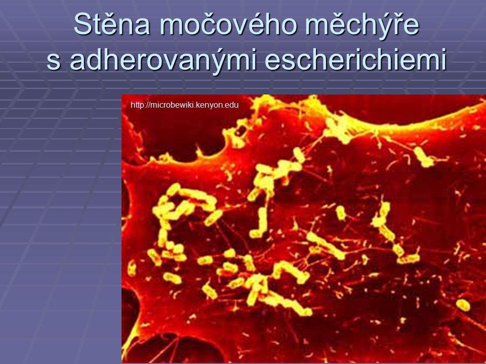 Stěna močového měchýře s adherovanými escherichiemi