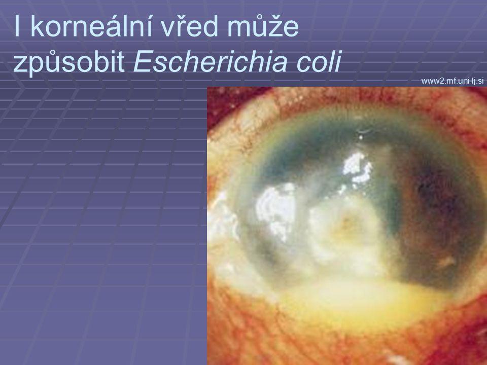 I korneální vřed může způsobit Escherichia coli