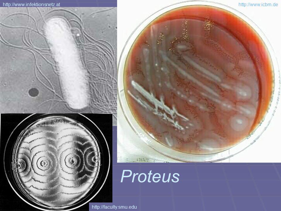 Proteus http://www.infektionsnetz.at http://www.icbm.de