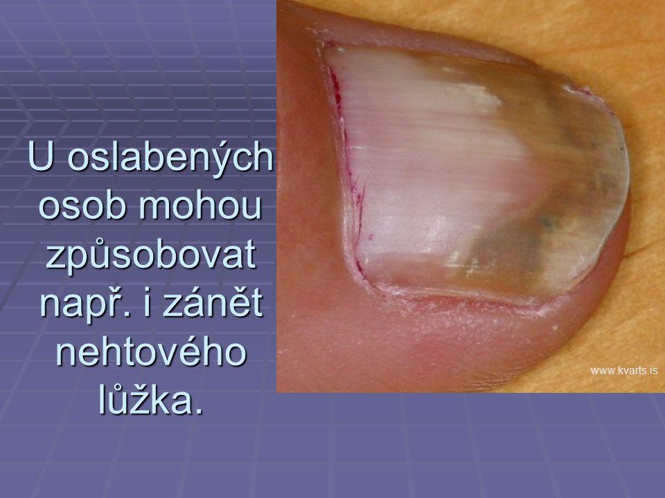 U oslabených osob mohou způsobovat např. i zánět nehtového lůžka.