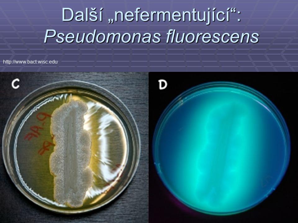 """Další """"nefermentující : Pseudomonas fluorescens"""