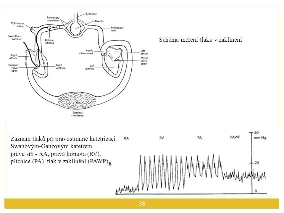 Schéma měření tlaku v zaklínění