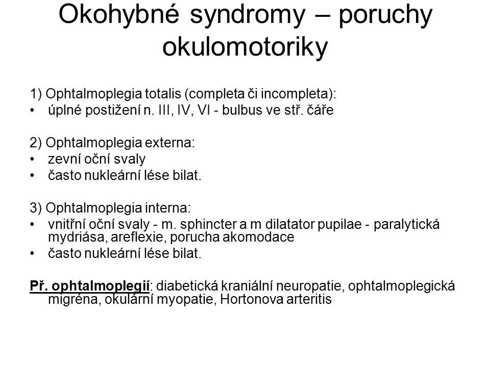 Okohybné syndromy – poruchy okulomotoriky
