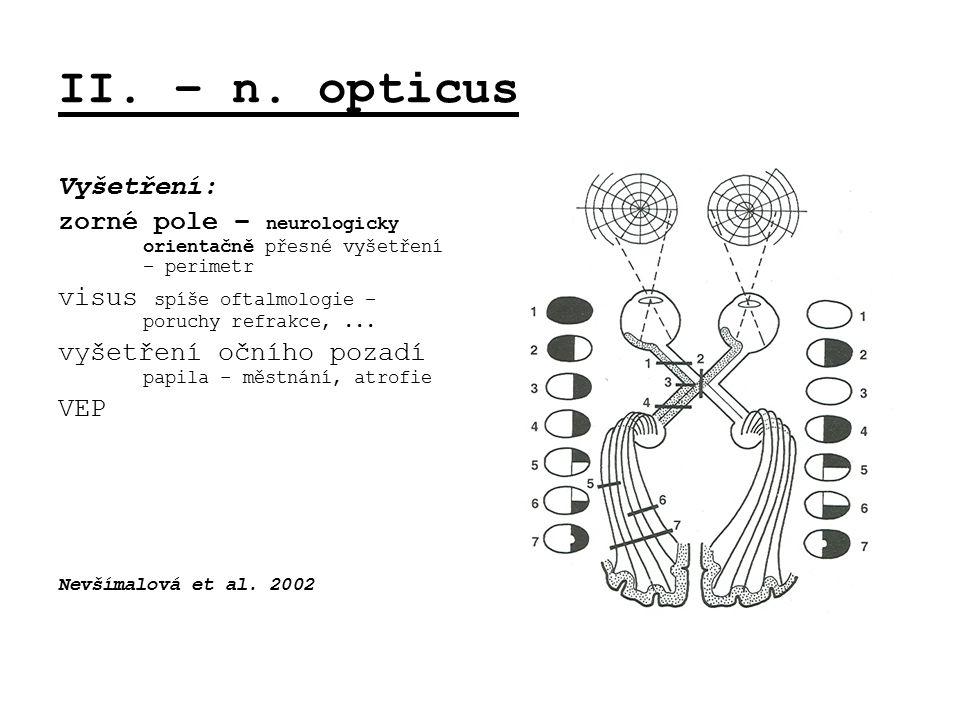 II. – n. opticus Vyšetření: