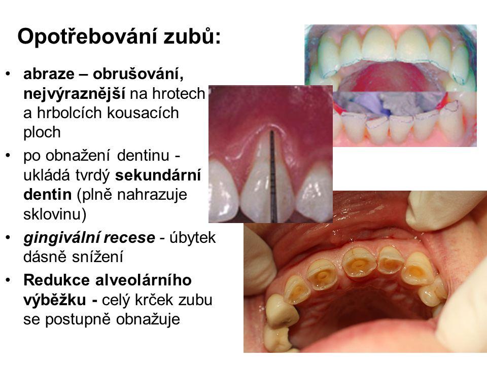 Opotřebování zubů: abraze – obrušování, nejvýraznější na hrotech a hrbolcích kousacích ploch.