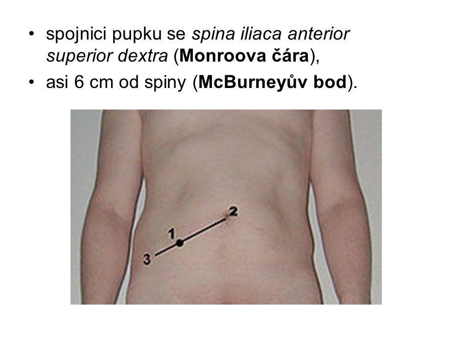 spojnici pupku se spina iliaca anterior superior dextra (Monroova čára),