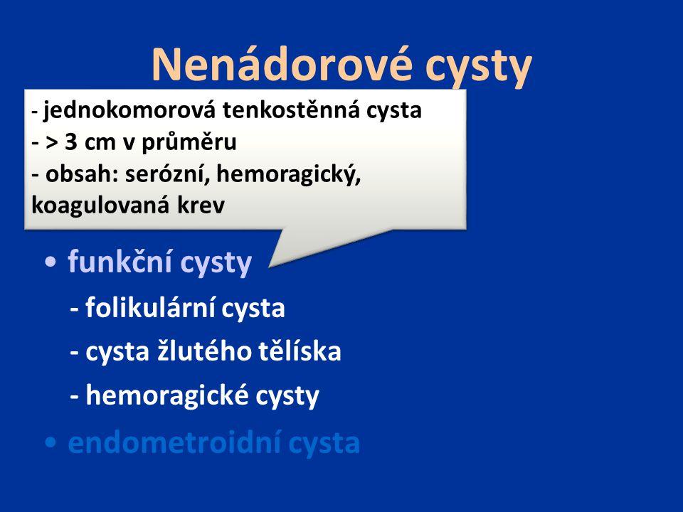 Nenádorové cysty inkluzí cysty funkční cysty endometroidní cysta
