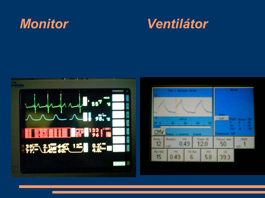 Monitor Ventilátor