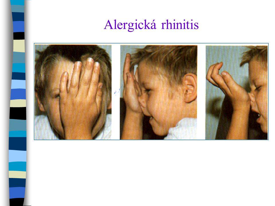 Alergická rhinitis