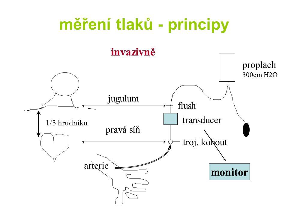 měření tlaků - principy