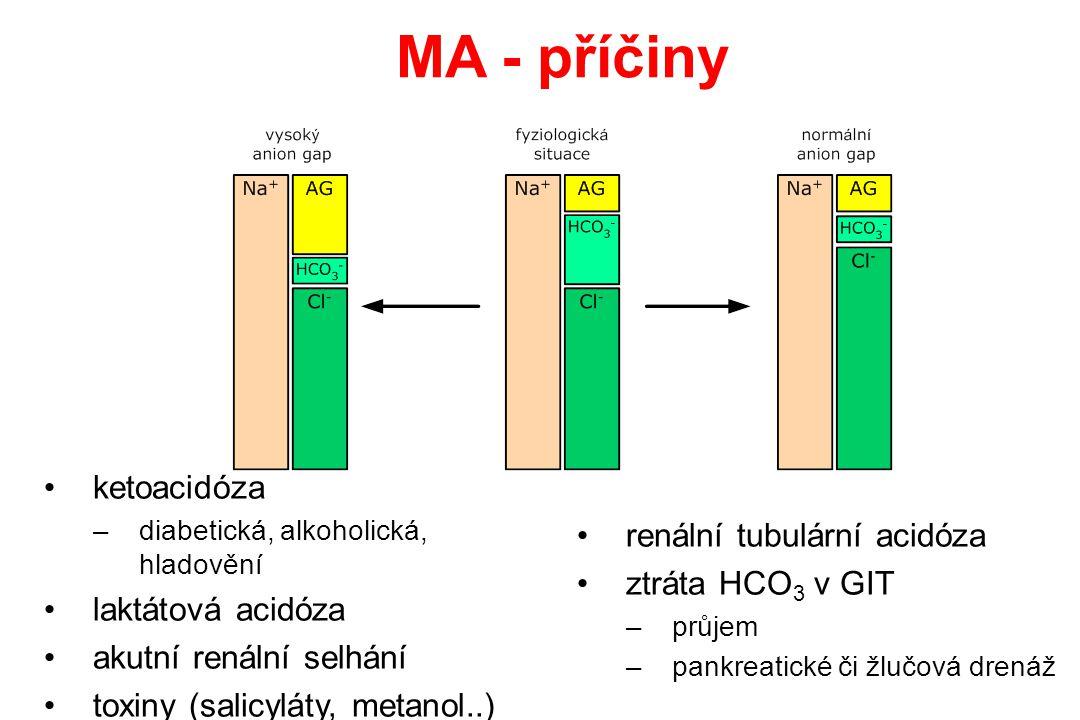 MA - příčiny ketoacidóza renální tubulární acidóza ztráta HCO3 v GIT