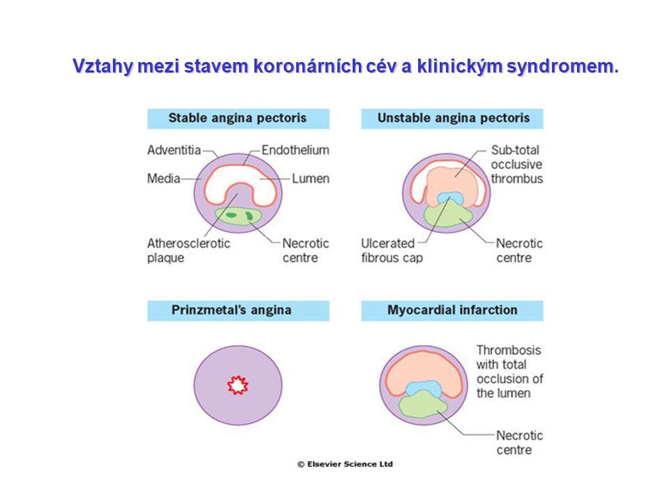 Vztahy mezi stavem koronárních cév a klinickým syndromem.