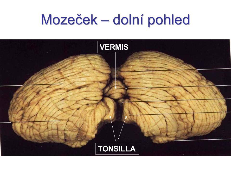 Mozeček – dolní pohled VERMIS TONSILLA