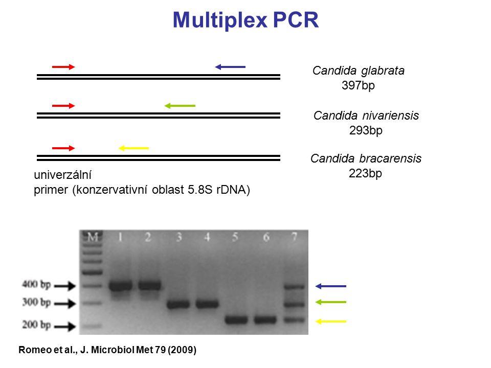 Multiplex PCR Candida glabrata 397bp Candida nivariensis 293bp