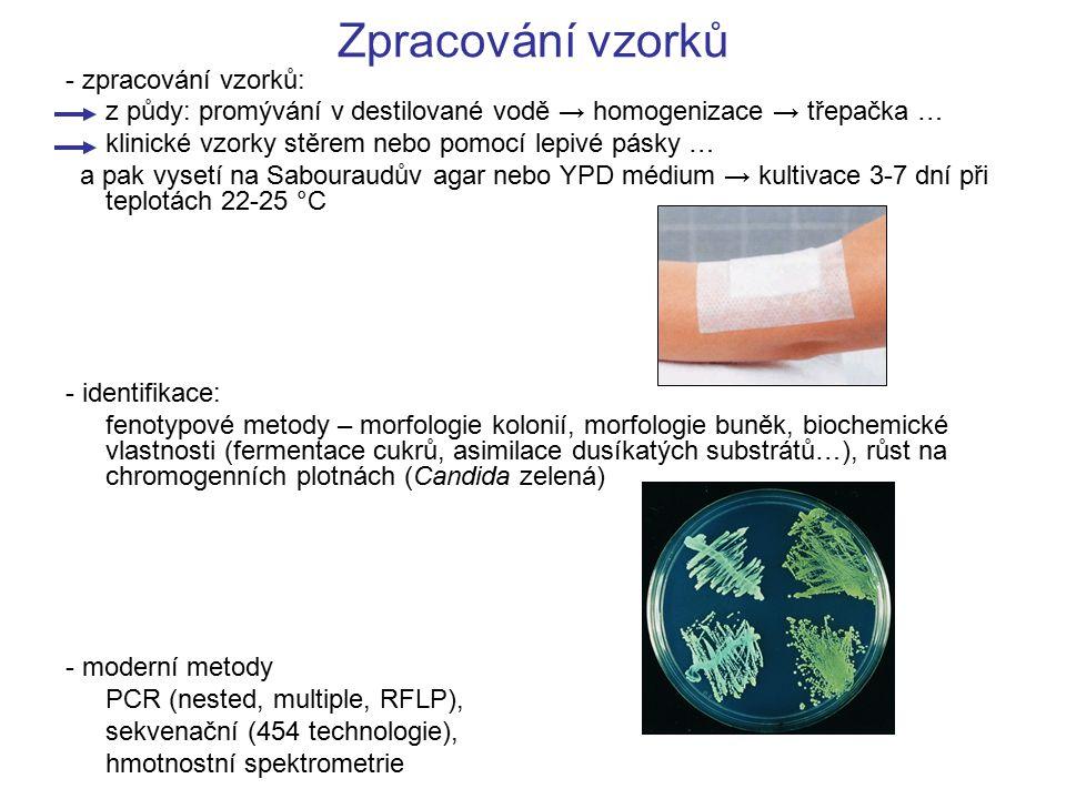 Zpracování vzorků - zpracování vzorků: