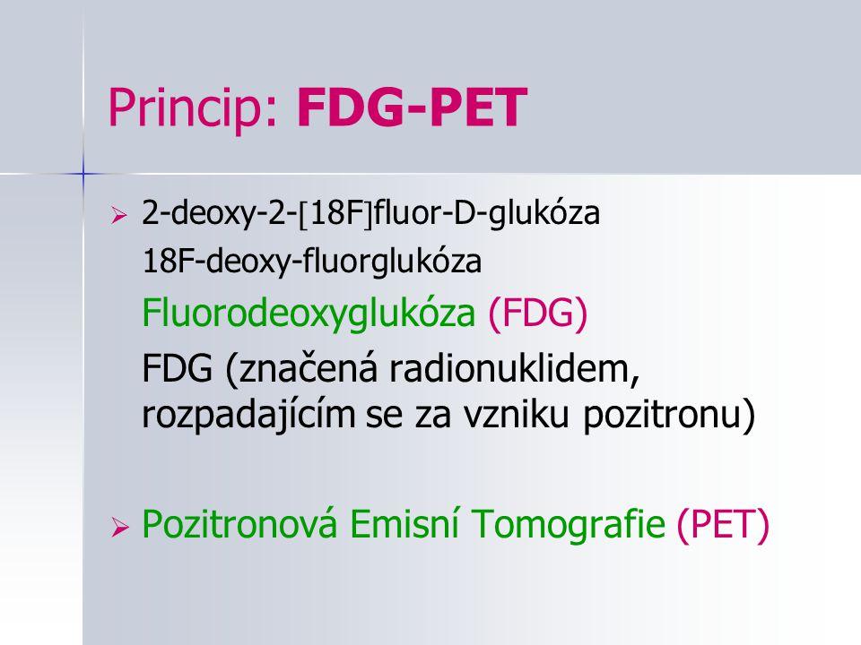 Princip: FDG-PET 2-deoxy-2-18Ffluor-D-glukóza. 18F-deoxy-fluorglukóza. Fluorodeoxyglukóza (FDG)