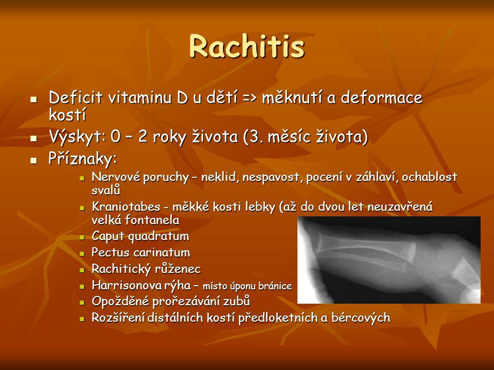 Rachitis Deficit vitaminu D u dětí => měknutí a deformace kostí