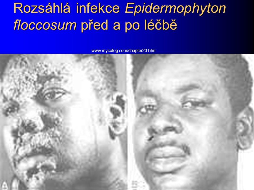 Rozsáhlá infekce Epidermophyton floccosum před a po léčbě
