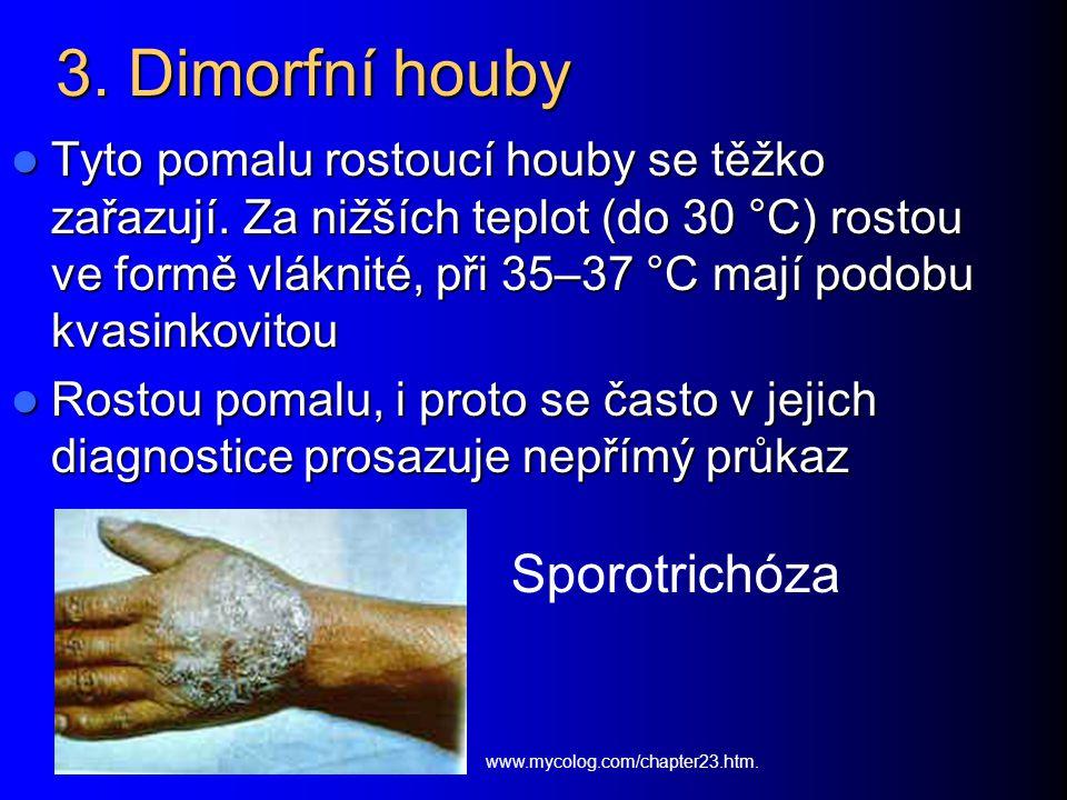 3. Dimorfní houby Sporotrichóza
