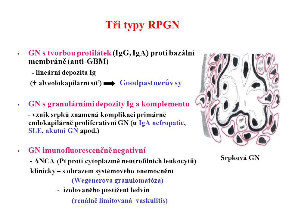 Tři typy RPGN GN s tvorbou protilátek (IgG, IgA) proti bazální membráně (anti-GBM) - lineární depozita Ig.