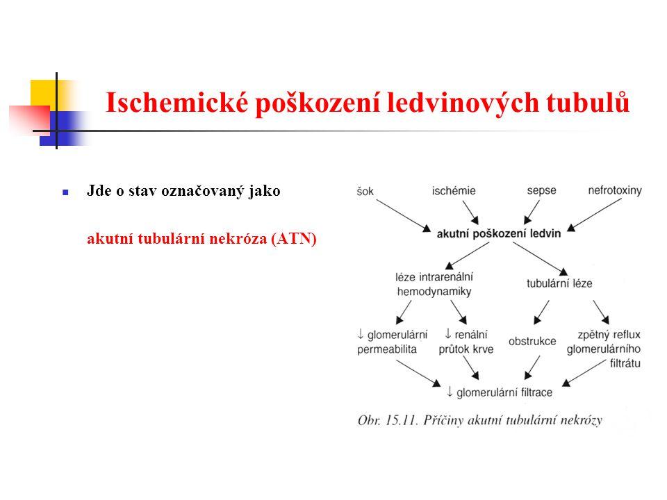 Ischemické poškození ledvinových tubulů