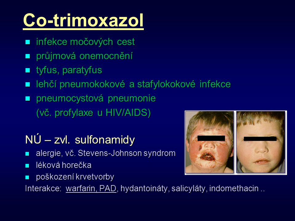 Co-trimoxazol NÚ – zvl. sulfonamidy infekce močových cest