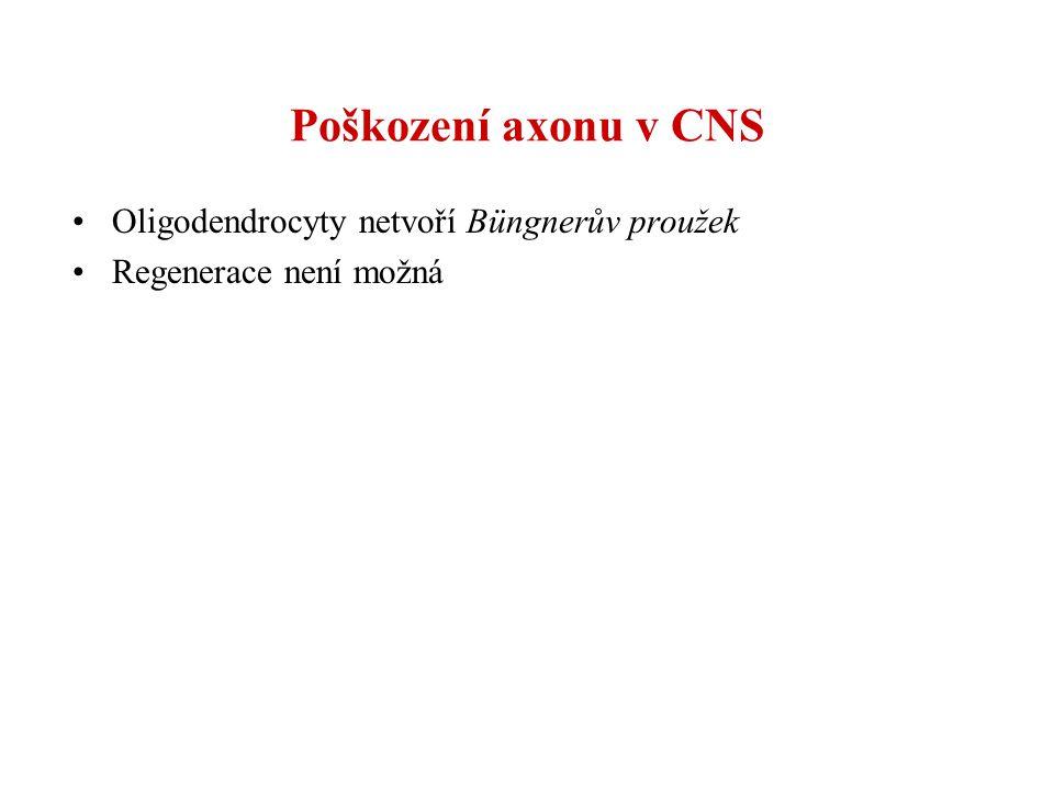Poškození axonu v CNS Oligodendrocyty netvoří Büngnerův proužek