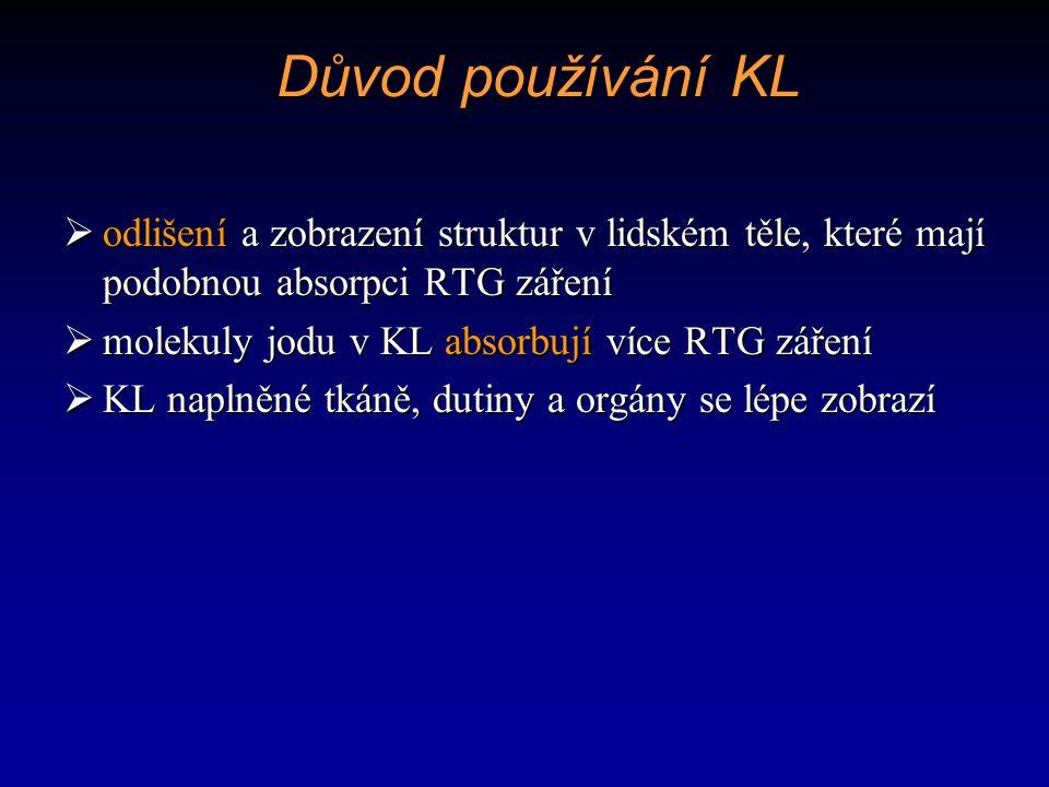 Důvod používání KL odlišení a zobrazení struktur v lidském těle, které mají podobnou absorpci RTG záření.