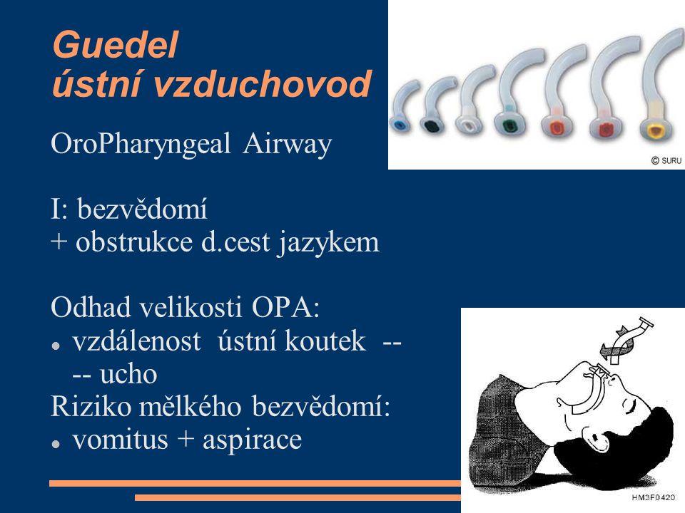 Guedel ústní vzduchovod