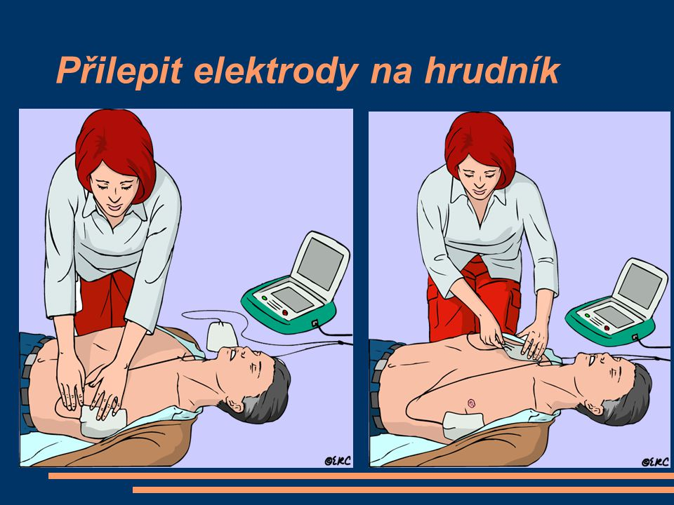 Přilepit elektrody na hrudník