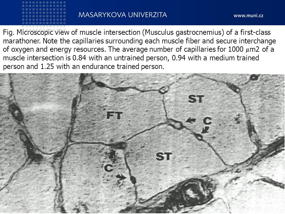 Fig. Microscopic view of muscle intersection (Musculus gastrocnemius) of a first-class marathoner. Note the capillaries surrounding each muscle fiber and secure interchange of oxygen and energy resources. The average number of capillaries for 1000 m2 of a muscle intersection is 0.84 with an untrained person, 0.94 with a medium trained person and 1.25 with an endurance trained person.