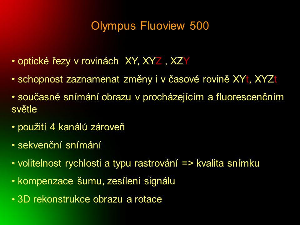 Olympus Fluoview 500 optické řezy v rovinách XY, XYZ , XZY