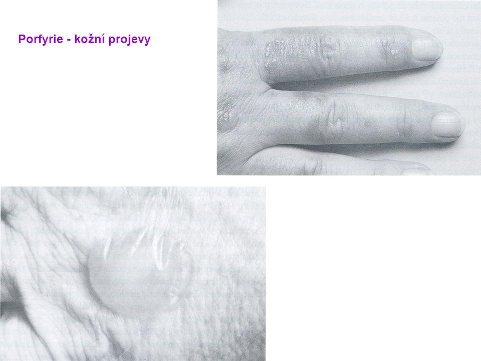 Porfyrie - kožní projevy
