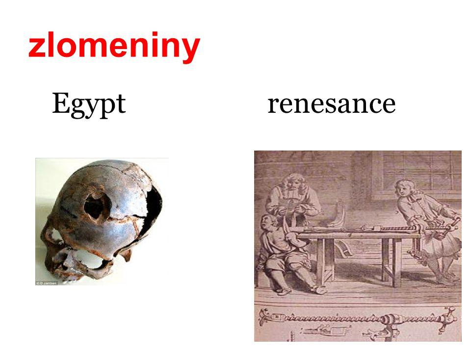 zlomeniny Egypt renesance