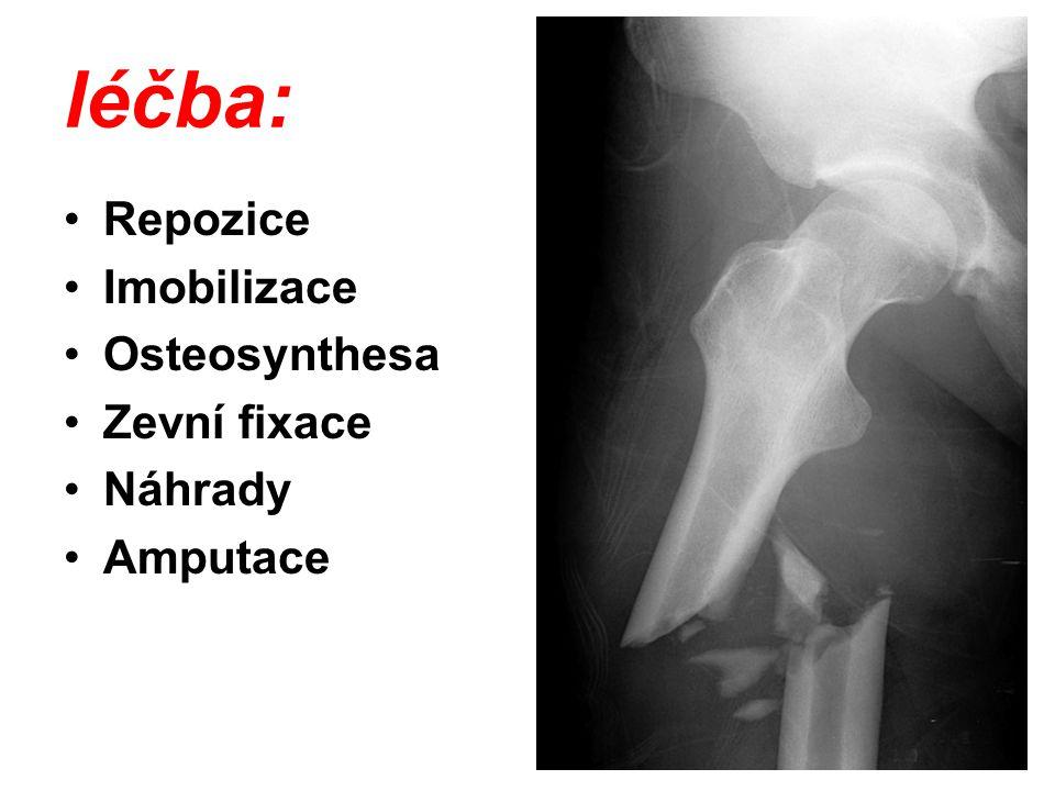 léčba: Repozice Imobilizace Osteosynthesa Zevní fixace Náhrady