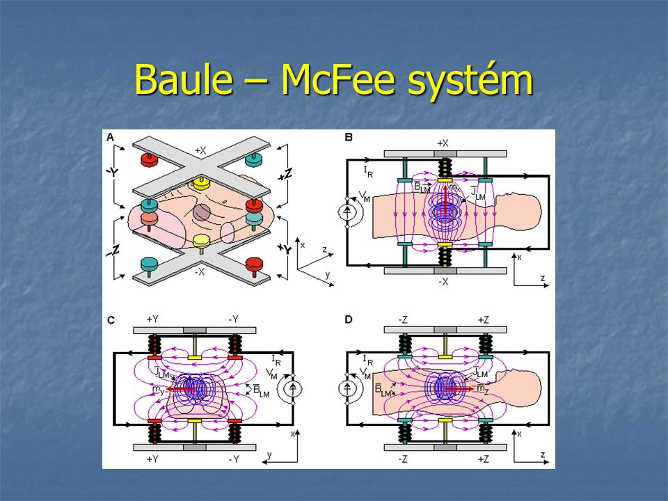 Baule – McFee systém