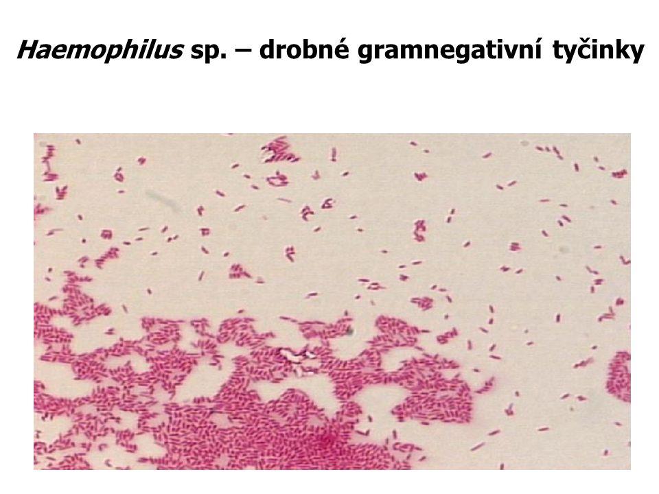 Haemophilus sp. – drobné gramnegativní tyčinky