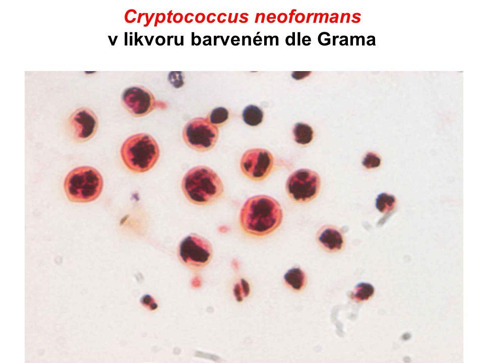 Cryptococcus neoformans v likvoru barveném dle Grama